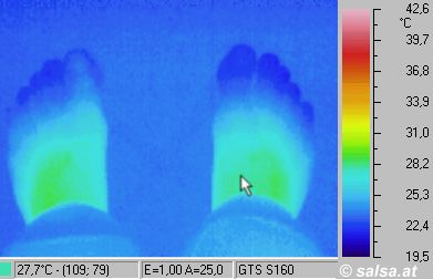 feet - (infrared pictures / thermography of a foot